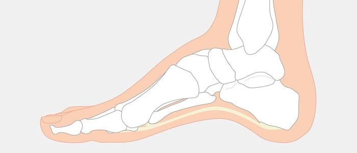 ilustração pés cavus